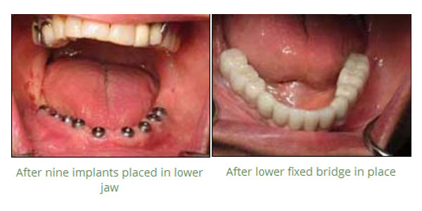 Tooth Crowns and Veneers
