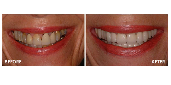 Attractive Gums - Gum Bleaching